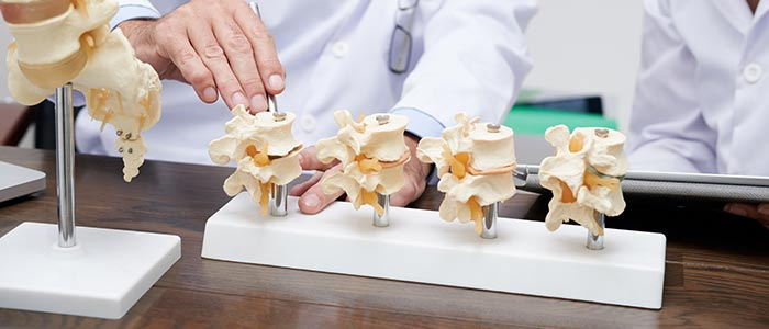 Chiropractic Care in San Francisco for Herniated Discs